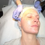 Zioła (w terapii endometriozy)